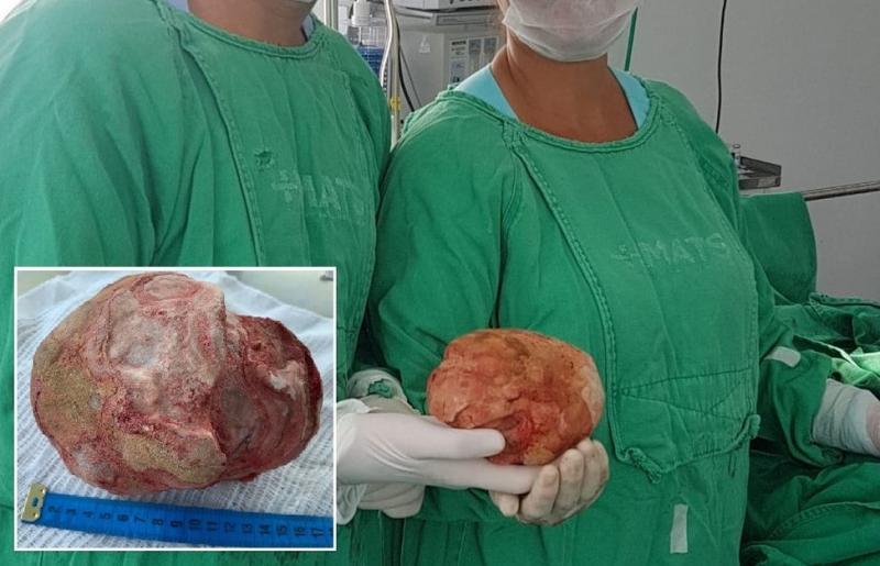 Chapada Diamantina: Lavrador de 51 anos tem pedra de 1,3 Kg e 18 cm retirada da bexiga em cirurgia