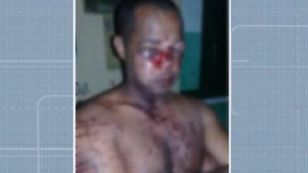 Chapada: Homem relata ter sido espancado por PMs após discussão em Andaraí Polícia investiga o caso